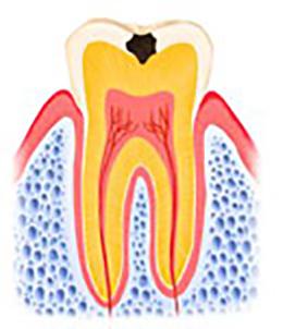 虫歯 C1